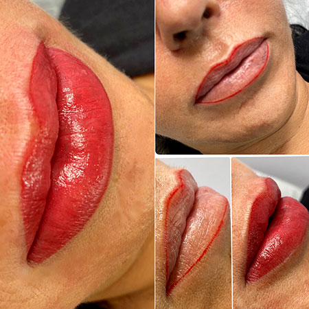 before-and-after-lips