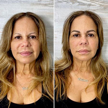 eyeberows permanent